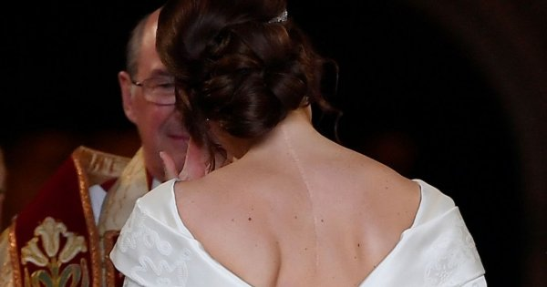 Princess Eugenie shows spinal surgery scar in wedding dress to honour NHS
